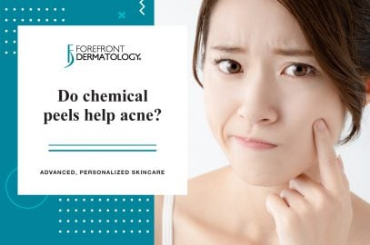 Do Chemical Peels Help Acne?
