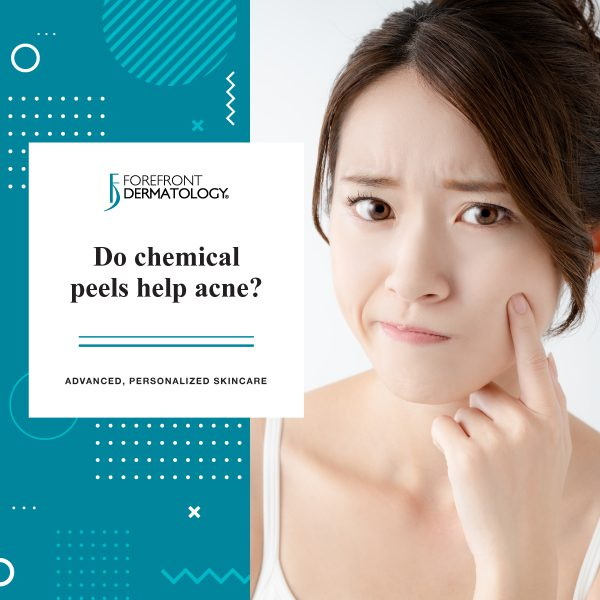 Do Chemical Peels Help Acne?