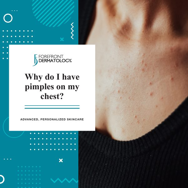 Why Do I Have Pimples on My Chest?