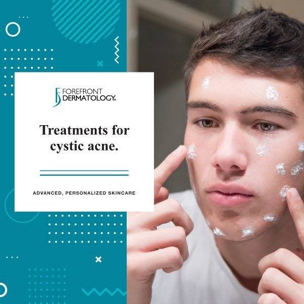 Treatments for Cystic Acne
