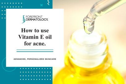 How to Use Vitamin E Oil for Acne