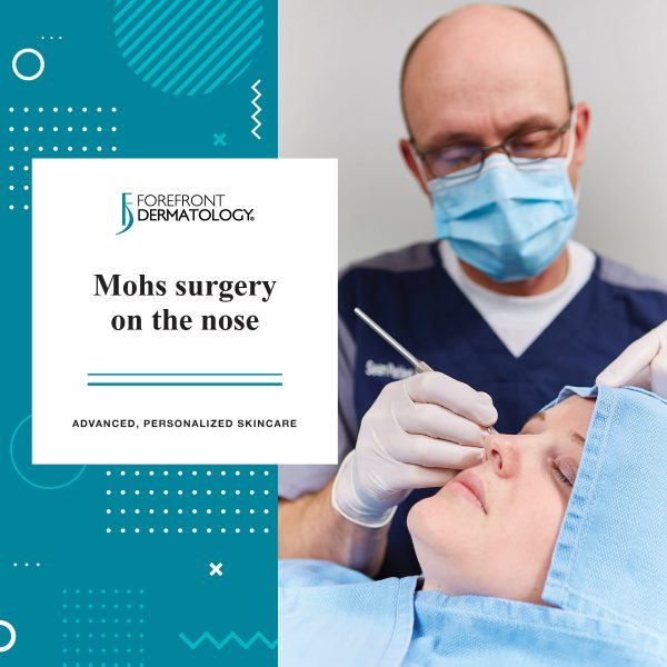 Mohs Surgery on the Nose | Forefront Dermatology