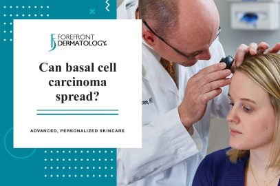 Can Basal Cell Carcinoma Spread? | Forefront Dermatology