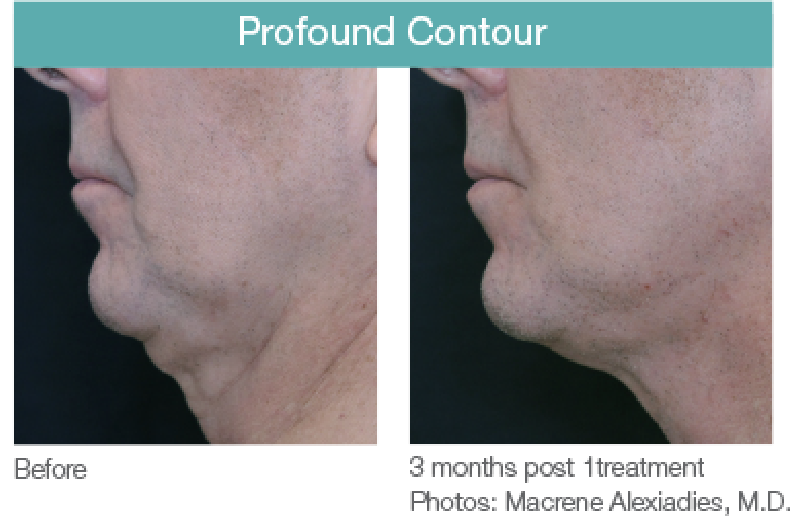 Profound Contour Before and After