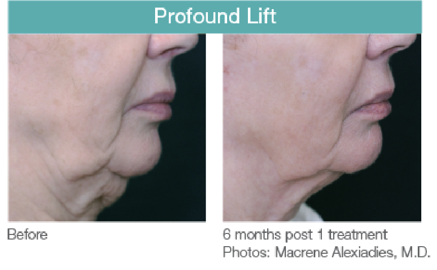 Profound Lift Before and After