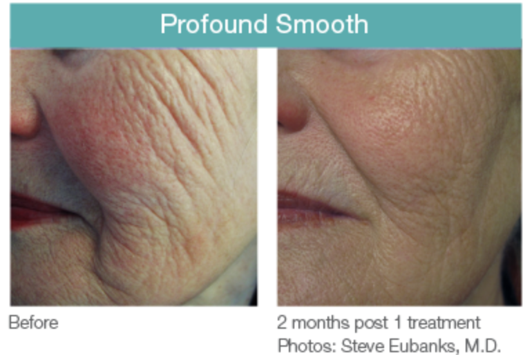 Profound Smooth Before and After