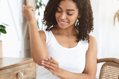 Psoriasis in Skin of Color