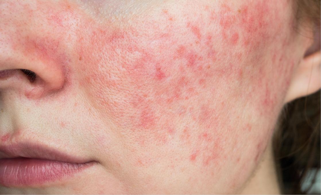 what causes lupus