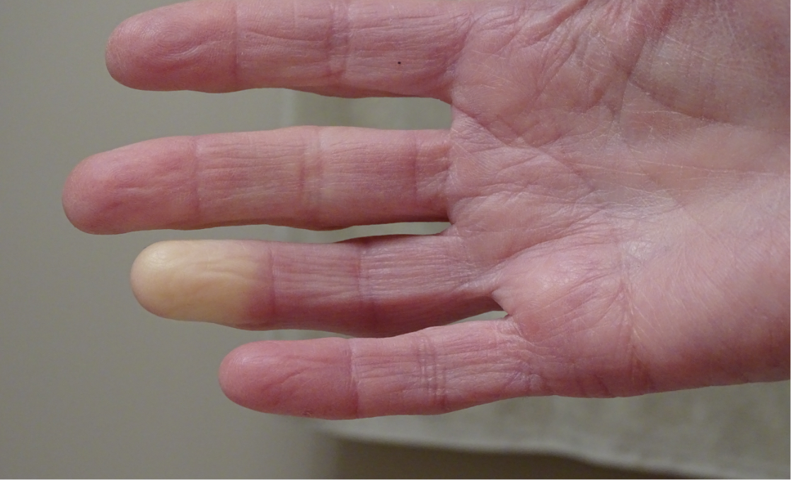different types of scleroderma