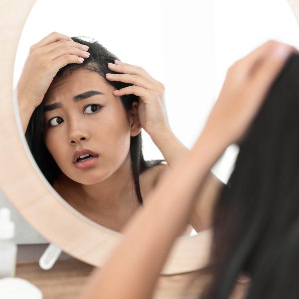 Alopecia Areata 101
